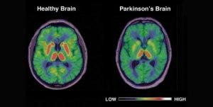 parkinson-brain5431